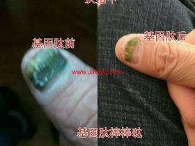 北方基因灰指甲经典案例