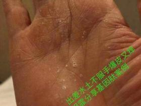 手褪皮用基因肽好转案例