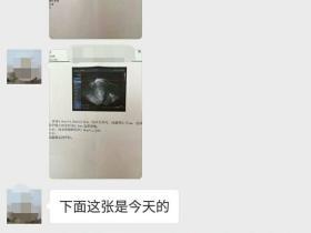 子宫肌瘤案例