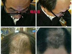 腰椎突出、秃顶增发案例
