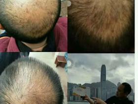 长头发、增发案例