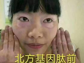 基因肽美容护肤案例