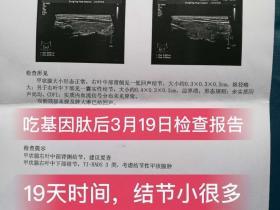 甲状腺结节案例