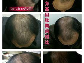 基因肽秃顶生发案例