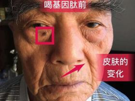 北方基因肽老年瘤案例