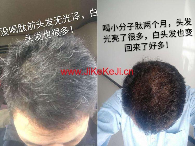 白发变黑发,脂肪肝,息肉,体型变化