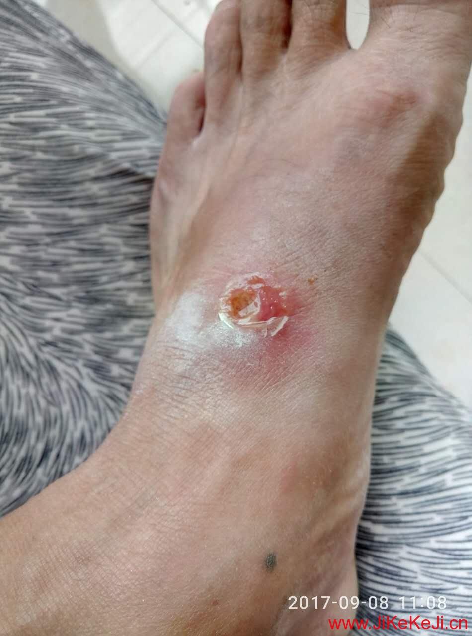 北方基因肽外伤案例
