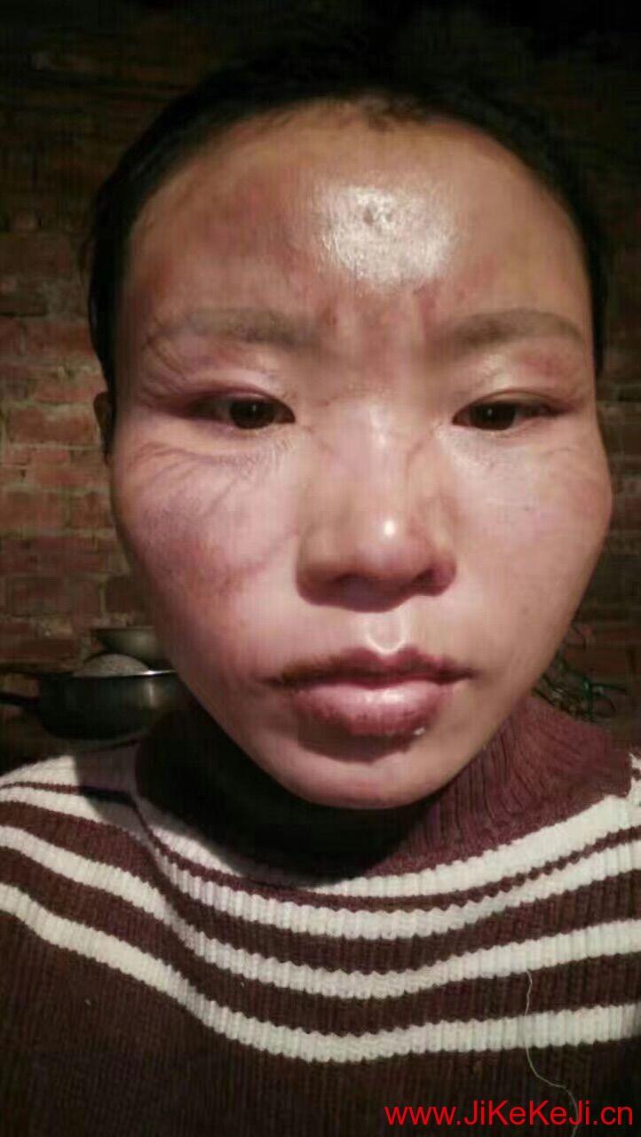 基因小分子肽脸部灼伤案例