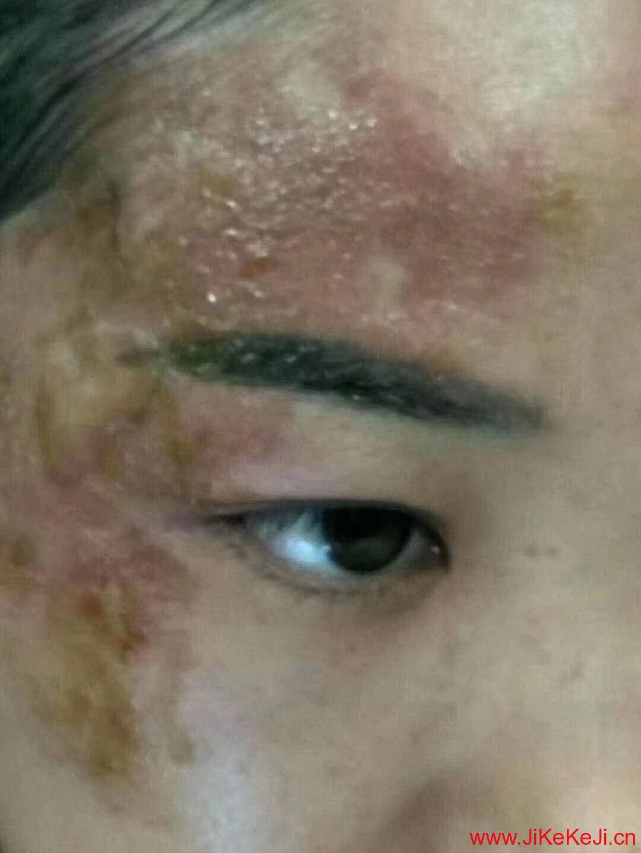 基因肽烧伤伤疤案例