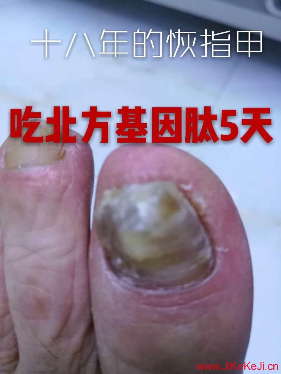 十八年灰指甲基因肽案例