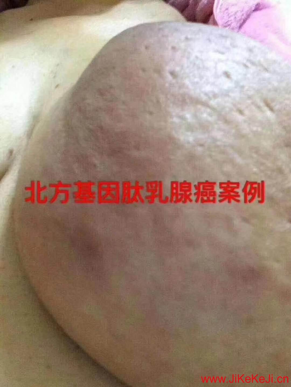 北方基因乳腺癌案例篇