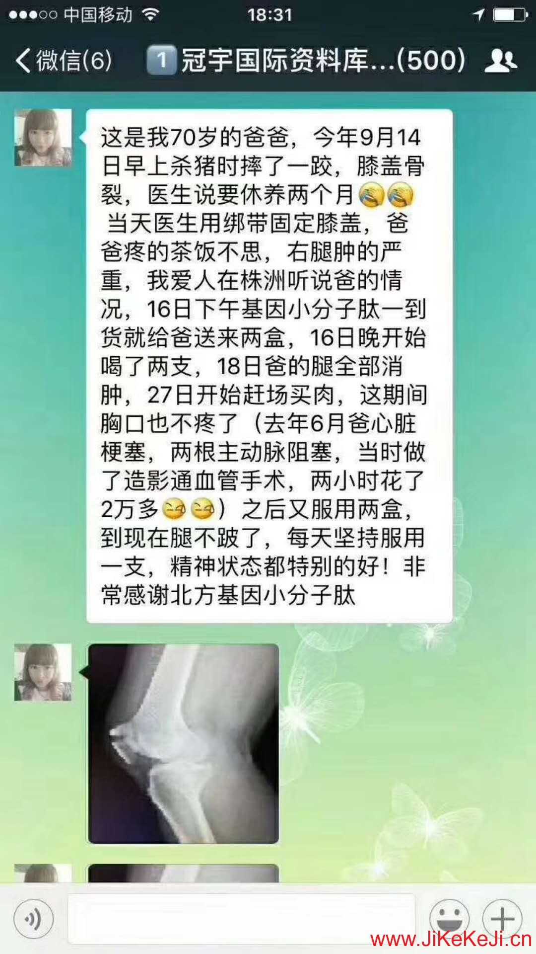 摔伤膝盖骨裂案例