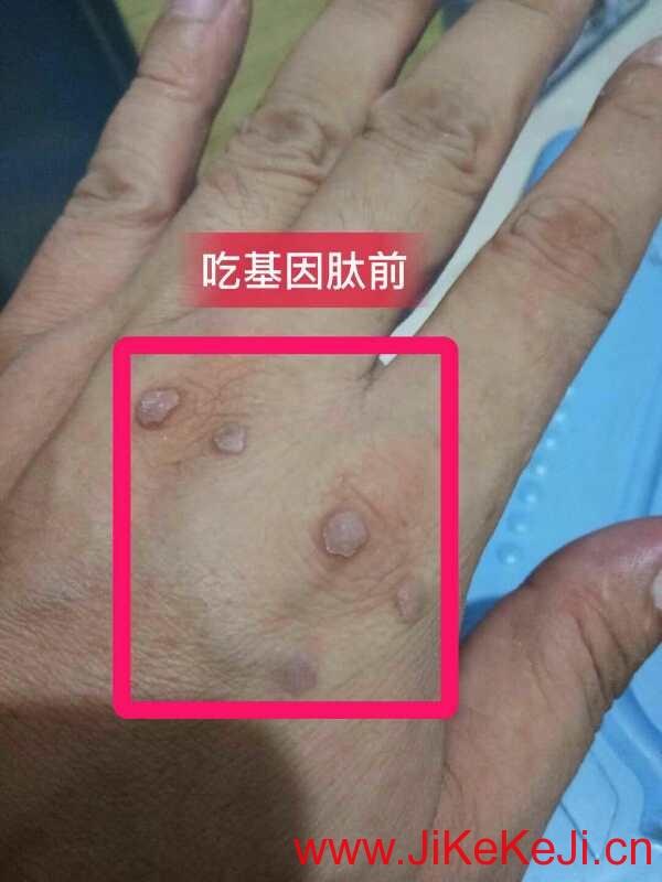 北方基因肽皮肤疣案例