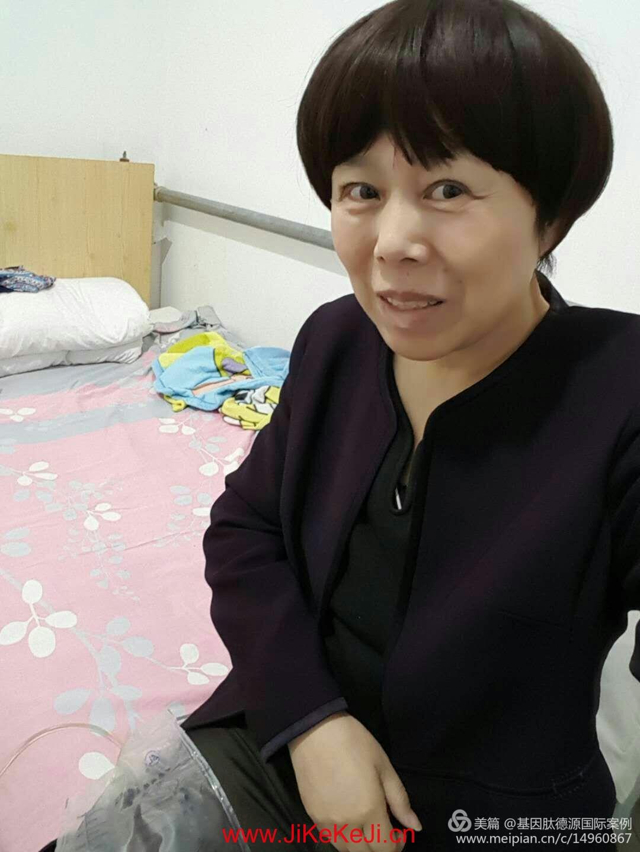 宫颈癌晚期案例