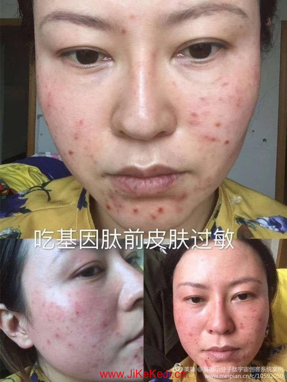 基因肽祛痘祛斑美容案例