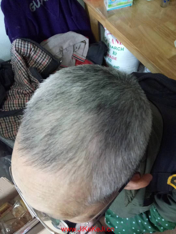 白发变黑发案例