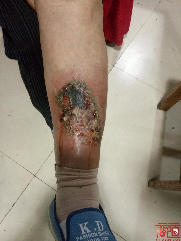 北方基因肽外伤伤口案例